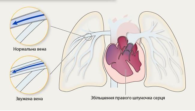 Легенева гіпертензія